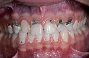 Meth-teeth